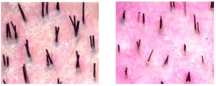 Normal scalp (left) and scalp with miniaturization (right)