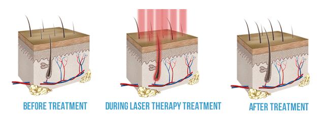 Afbeeldingsresultaat voor low level laser