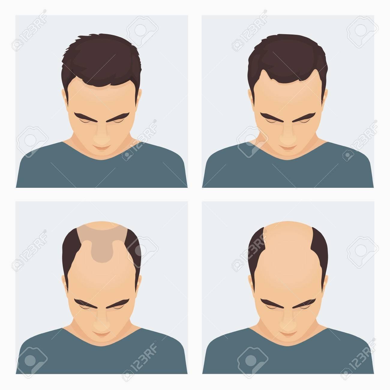 Afbeeldingsresultaat voor Hairloss pattern man