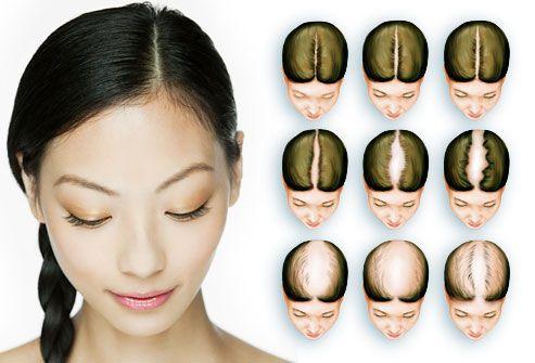 Afbeeldingsresultaat voor hairloss woman