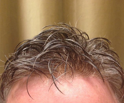 Men's Hair Restoration - La Maison De Cheveux