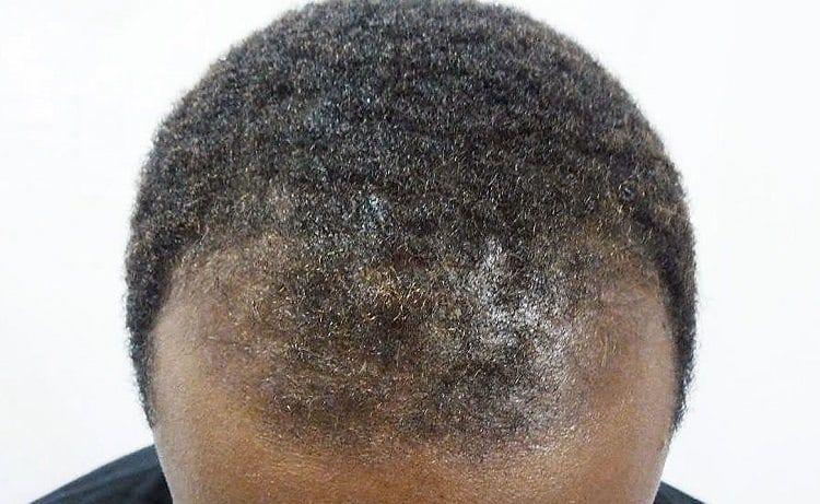 Bald Hair Care For Black Men | Dapper Mane