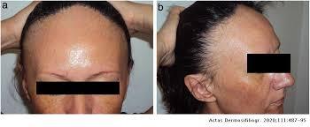 Frontal Fibrosing Alopecia: A Retrospective Study of 75 Patients | Actas Dermo-Sifiliográficas